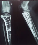 radiografiaCV